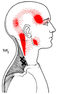 Pic 1- Upper Trapezius Trigger Point Pattern